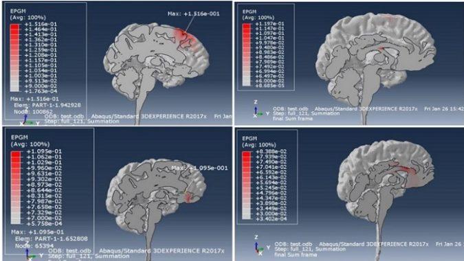 Dassault, NIMHANS, și UberCloud dezvoltă o soluție inovativă pentru tratamentul schizofreniei