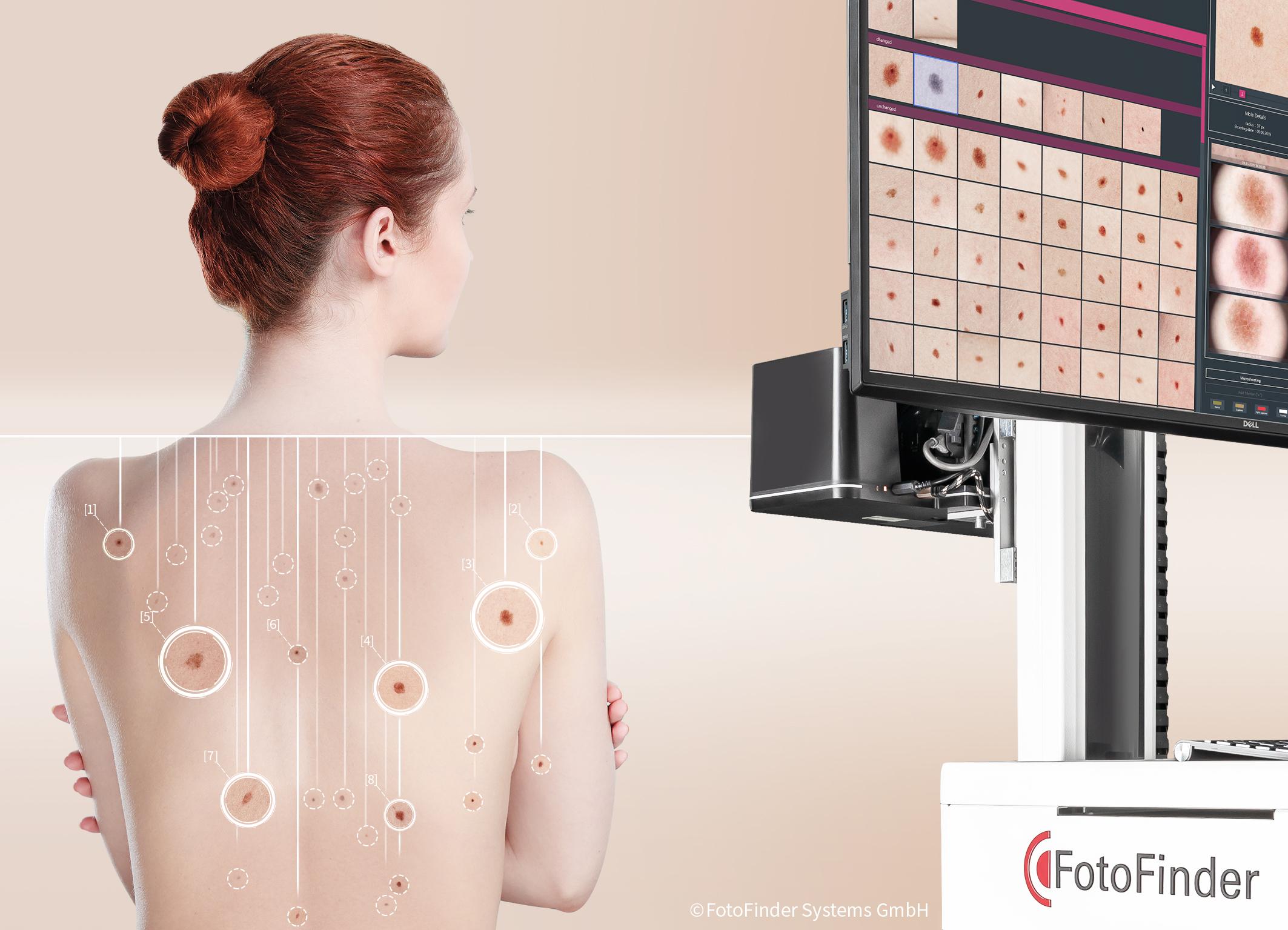 Inteligenţa artificială poate ajuta la detectarea timpurie a cancerului de piele
