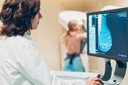 Este Google AI este mai bun la screeningul cancerului de sân decât experții umani?
